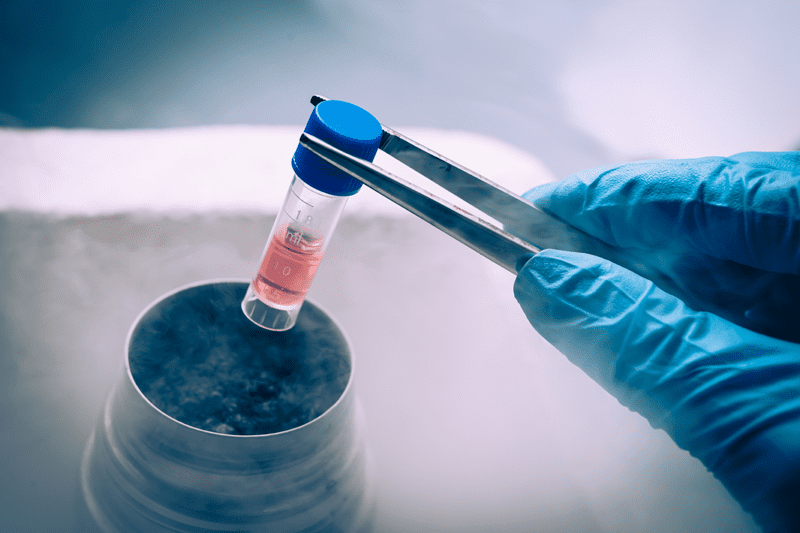 sperm freezing cryopreservation